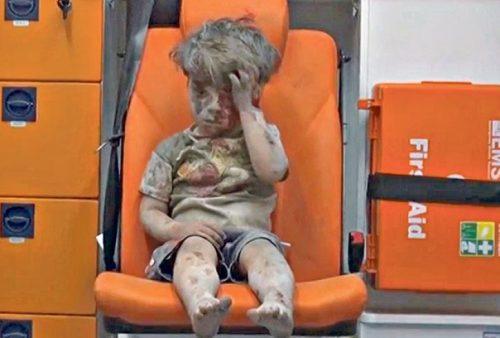 Omran, 5 anni, all'interno di un'ambulanza dopo essere stato estratto dalle macerie di una casa ad Aleppo (agosto 2016)